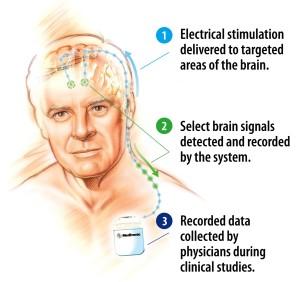DBS implant